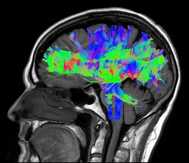 MR_GBL_1.5T_Voyager_Clinical_Brain-DTI-FiberTrak_0309